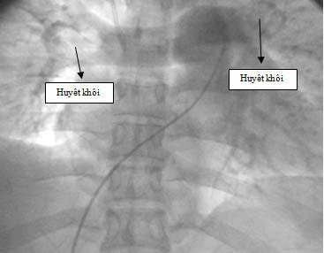 ECG-h10